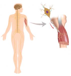Amyotrofische Laterale Sclerose